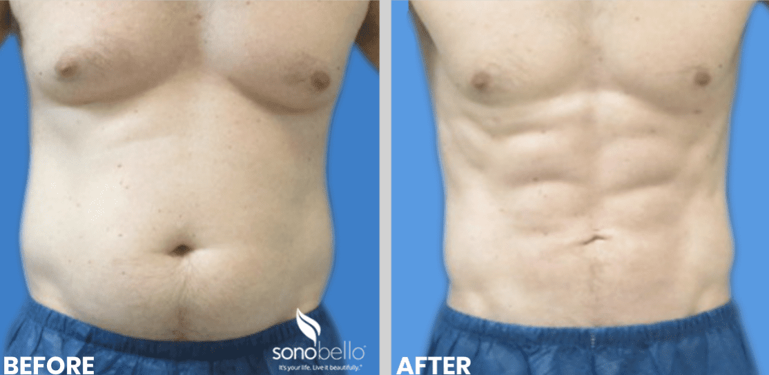 Sono Bello Micro Liposuction 8